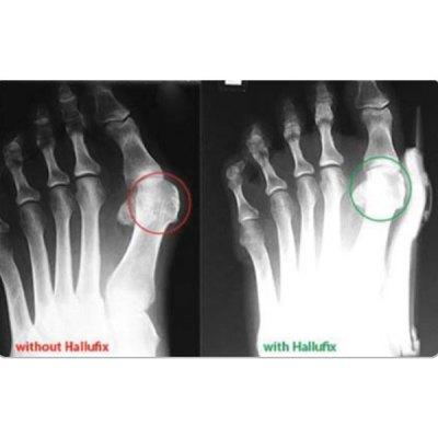 Hallufix Bunion Aid λειτουργικός νάρθηκας βλαισού μέγα δακτύλου