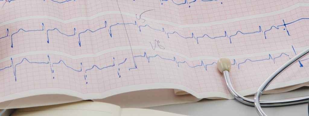 Gifts for cardiologists - ECG