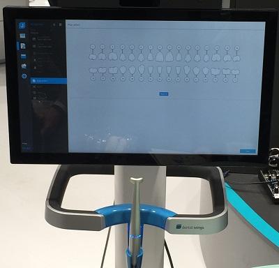 Dwio Intraoral Scanner Dental Wings