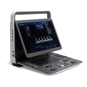 Sonoscape E1 Portable Ultrasound