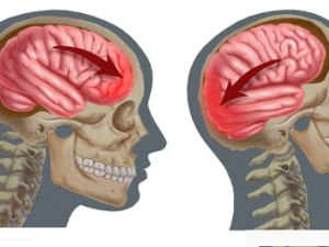 сотрясение головного мозга, восстановление, лечение
