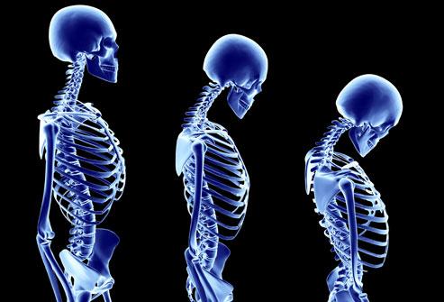 остеопороз, Romosozumab, sclerostin