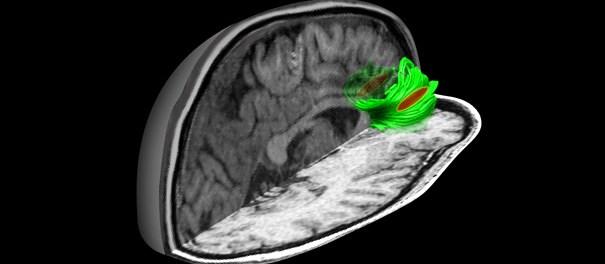 рассеянный склероз, гуанабенз
