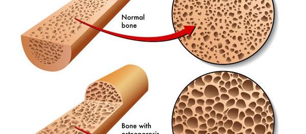 Патогенез синильного остеопороза