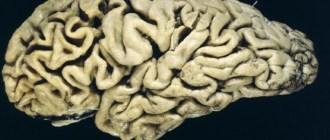 Диета - причина развития болезни Альцгеймера