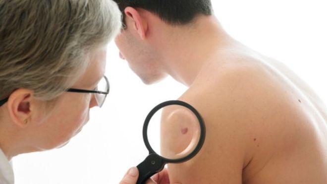 рак кожи, мутация