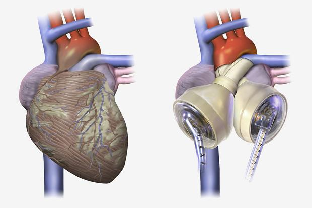 искусственное сердце