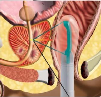 УЗИ, рак предстательной железы