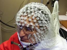 ЭЭГ, болезнь Альцгеймера
