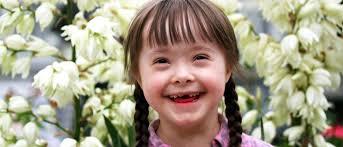 Особенности психического развития детей с болезнью Дауна