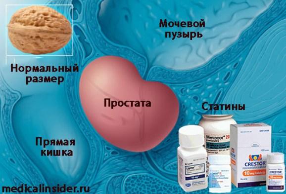 статины рак предстательной железы