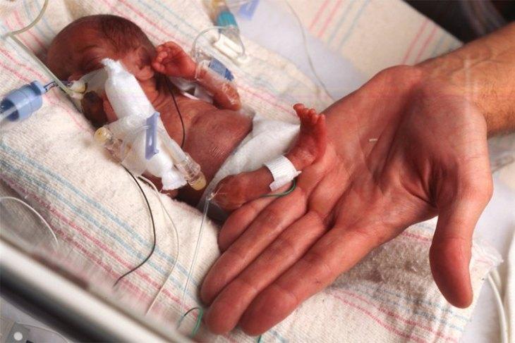 низкий вес при рождении, болезнь Бехтерева