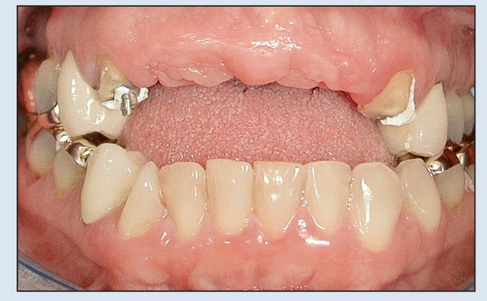 дефект челюсти, атрофия альвеолярных дуг