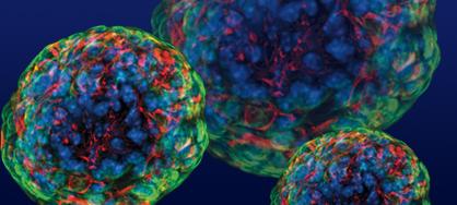 стволовые клетки, рак