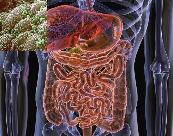 микрофлора кишечника, ожирение