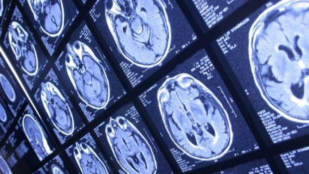ген, опухоль головного мозга