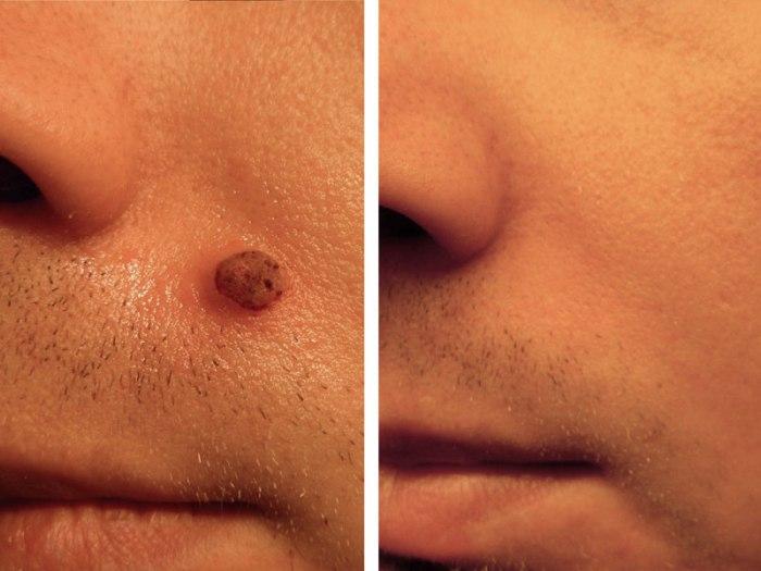онкологические заболевания кожи, удаление родинок, Росздравнадзор