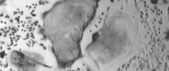 костная ткань, опухоль, раковые клетки