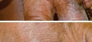 неходжкинская лимфома, resiquimod, резиквимодом