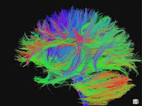 гипертония, головной мозг