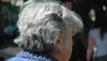 сотрясение головного мозга, пожилые люди
