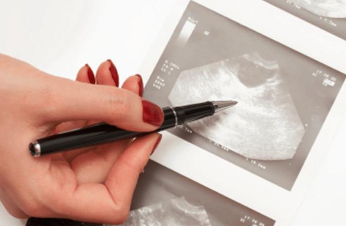 рак яичников, репродуктивные факторы