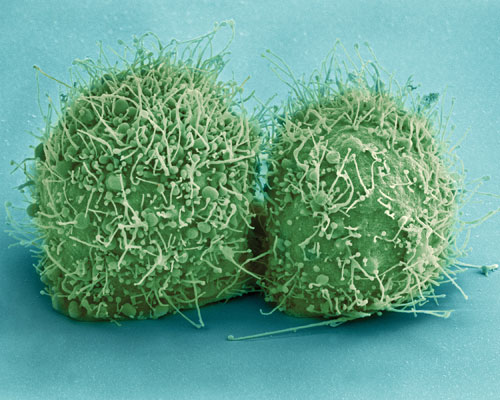 биогель, опухоль, рак, иммунотерапия