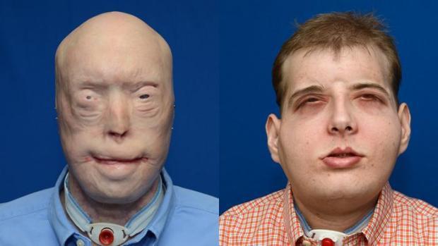 трансплантация, лицо,