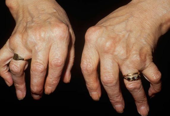 артрит, микровезикулы