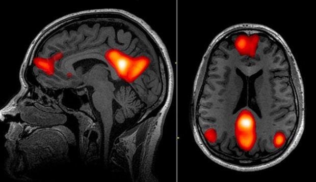Иностранный язык, обучение, The Journal of Neuroscience