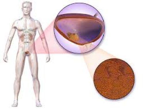 рак мочевого пузыря, математика, International Journal of Cancer