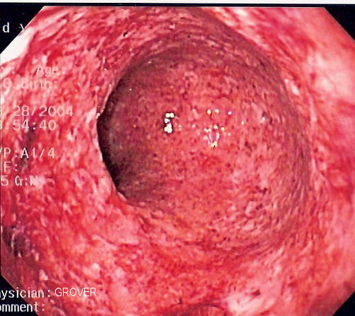 Alimentary Pharmacology & Therapeutics, воспалительные заболевания кишечника, болезнь Крона, анализ кала