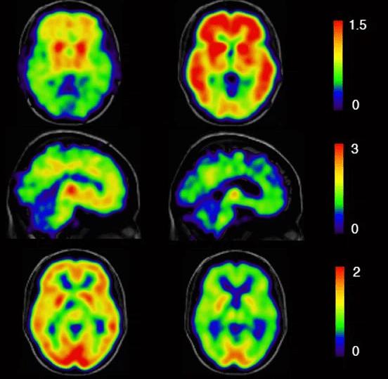 болезнь Альцгеймера, Brain