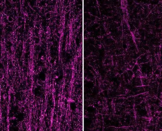 синдром Дауна, белое вещество, Neuron