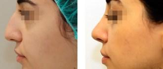 отзывы о пластике носа