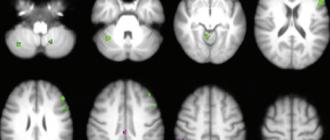 Radiology, магнитно-резонансная томография, когнитивные функции, видеоигры,