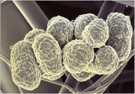 гингивит, Porphyromonas gingivalis, иммунитет
