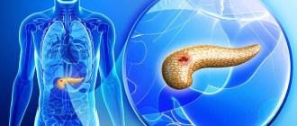 рак, поджелудочная железа