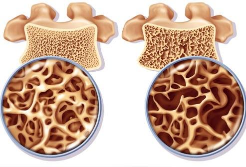 chto-takoe-osteoporoz