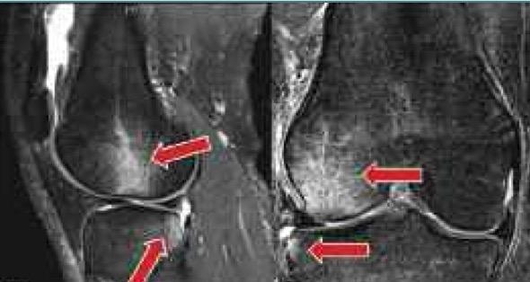 отек костного мозга, ушиб костей, гематома костей