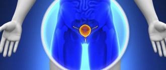 световая терапия, рак предстательной железы