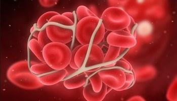 статины, венозная тромбоэмболия