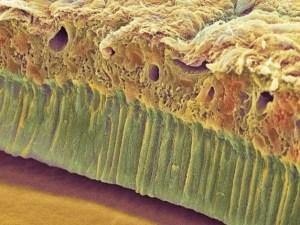 дефект зубной эмали, кариес