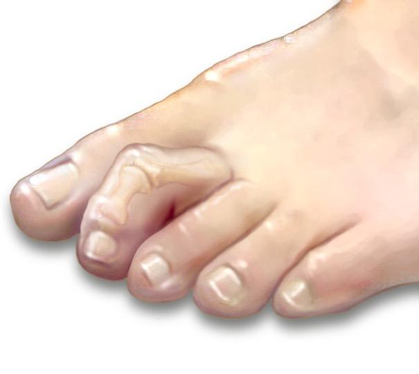 Молоткообразные пальцы стопы