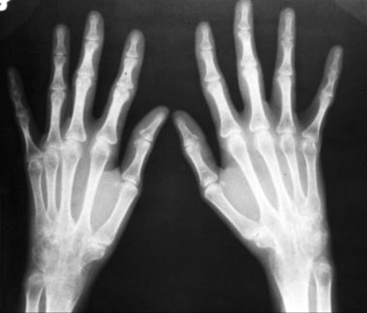 Псориартрический артрит, рентгенография