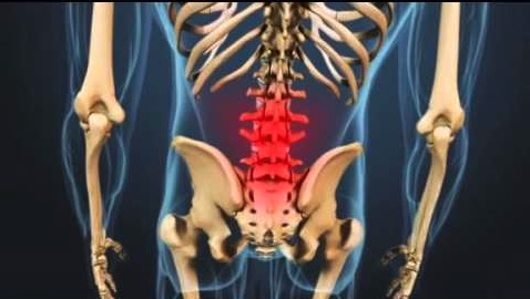 поясничный артрит