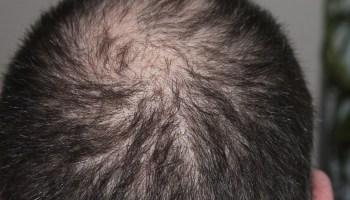 лето, осень, потеря волос, алопеция
