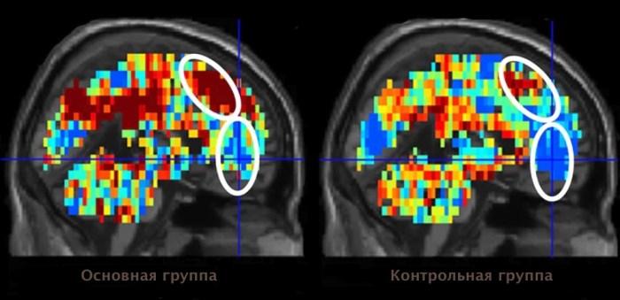 самоубийство, МРТ, визуализация