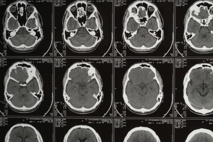 спинномозговая жидкость, мигрень, натрий-МРТ