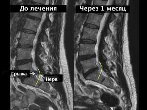 лечение, хроническая боль в спине